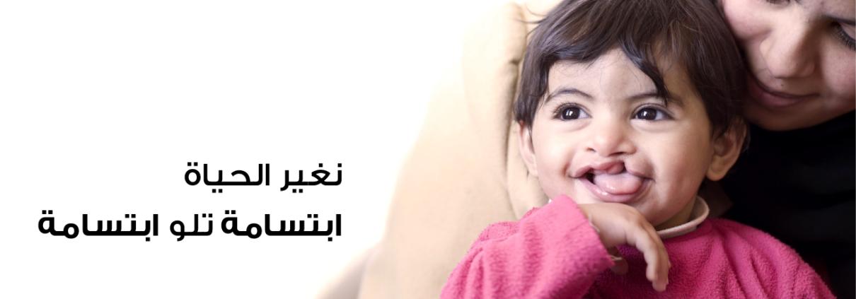 OPERATION SMILE JORDAN ARABIC